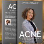 Vivian's masterpiece of depth & delight: ACNE THE FACIAL DIABETES…is a must read!